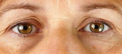 Opmærksomheden rettes indad i hypnoterapi